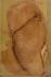 Патологоанатомични изменения при Травматичен перикардит